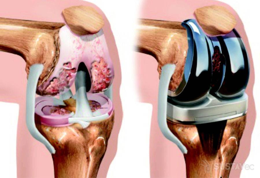 Как лечить гонартроз коленного сустава 2 степени: 6 методик 44-2
