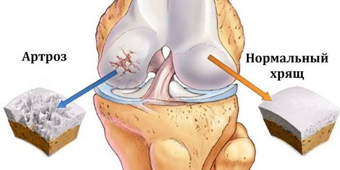 Схема коленного сустава, пораженного артрозом