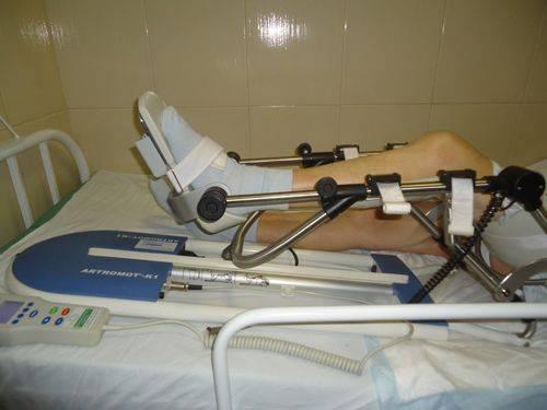 Тренажер для разработки коленного сустава после эндопротезирования