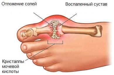 подагра на ногах лечение