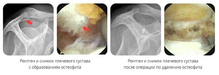 Лечение артроза плечевого сустава в домашних условиях