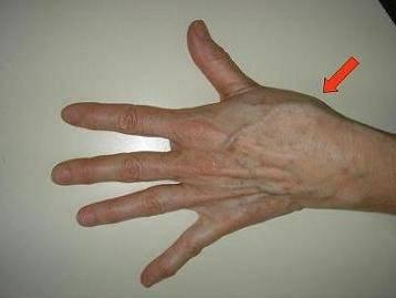 боль сустава большого пальца руки
