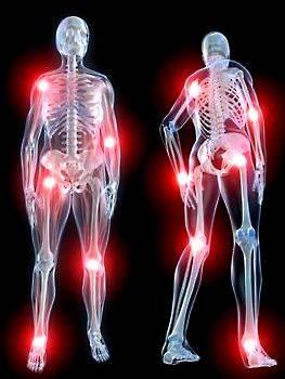 Одновременные боли во многих суставах могут быть симптомами полиартралгии