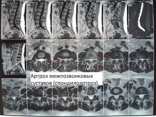 Что такое спондилоартроз 1,2,3 степени поясничного отдела позвоночника, лечение