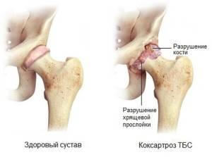 Коксартроз коленного сустава