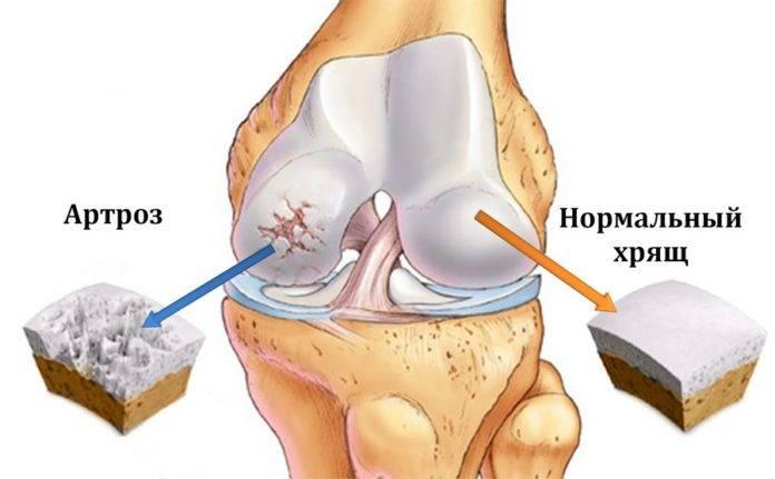 Коксартроз коленного сустава лечение симптомы причины профилактика