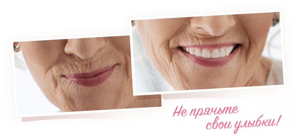 Протезирование зубов - импланты: преимущества, технология имплантации