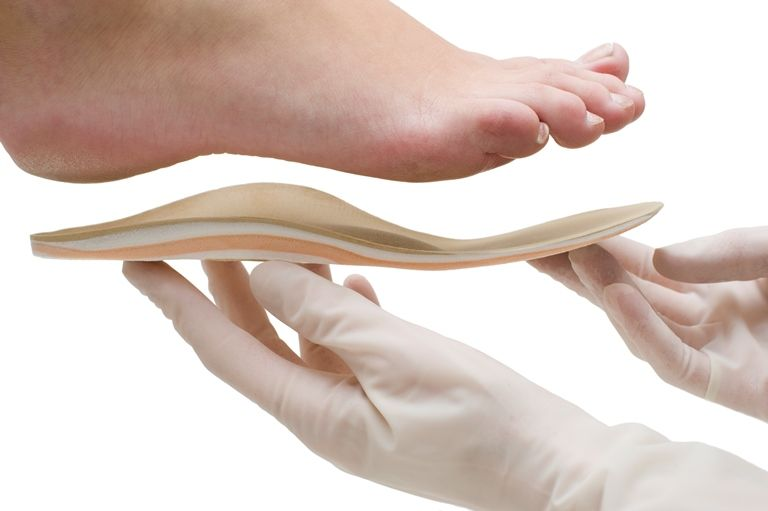 Виды ортопедических стелек: как выбрать?