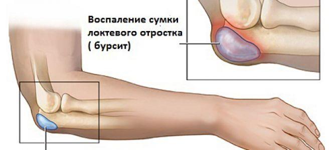Болят Суставы Пальцев И Кистей Рук