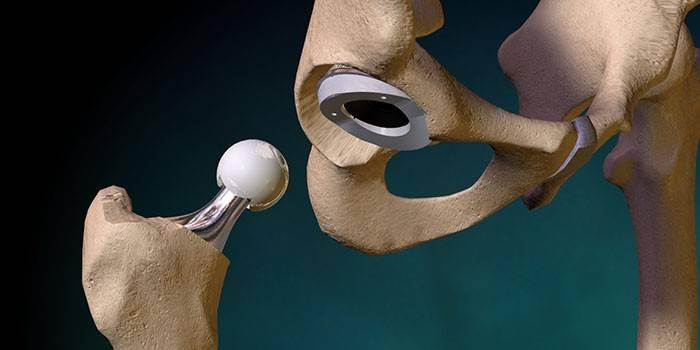 Эндопротез тазобедренного сустава
