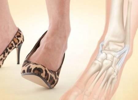 Ношение обуви на каблуках может стать причиной развития артроза