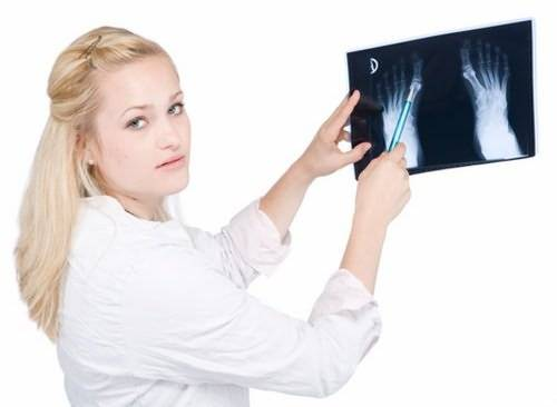 Рентген - диагностика заболевания артроза сустава
