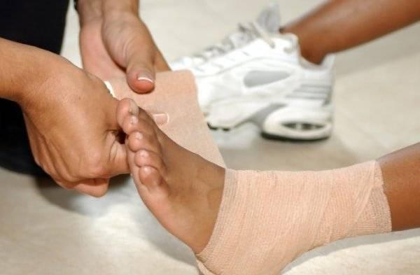 Наложение фиксирующей повязки на поврежденный сустав